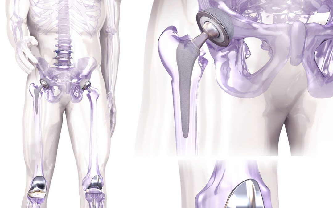 Orthopaedic Illustration