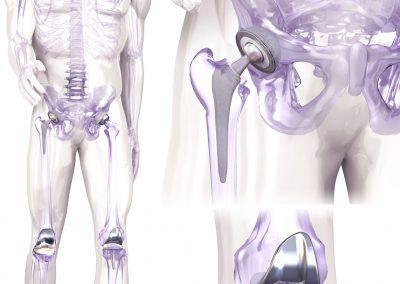 Orthopaedic Illustration